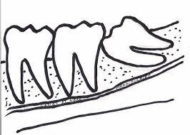 """Résultat de recherche d'images pour """"dent enclavée"""""""