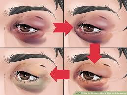 image led make a black eye with makeup step 4