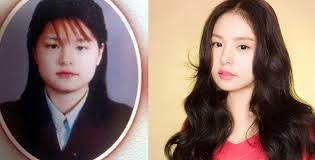 korean actresses plastic surgery before after
