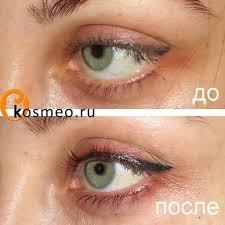 татуаж глаз для опущенных век различные варианты татуажа нужна ли