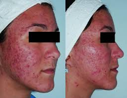 Levulan Blue Light Treatment Light Treatment And Photodynamic Therapy In Acne Patients