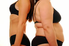 Dr. Dietrick | Weight Loss Surgery | Tampa, St. Petersburg, Clearwater