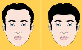 hairline lowering guide pros cons