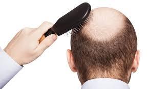 Diversi Tipi Di Alopecia Come Si Manifestano E Quali Sono I Rimedi