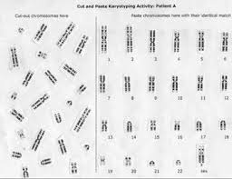 Karyotype Chart Pin On Medical