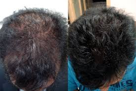 Male Pattern Baldness Cure Amazing Hair Loss Treatment In Gurgaon Male Baldness Treatment