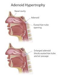 Adenoid Hypertrophy Causes Homeopathic Treatment