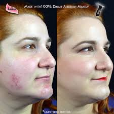 concealing rosacea with dinair