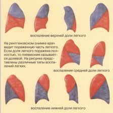 Пневмония воспаление легких у детей профилактика лечение Источник myfamilydoctor ru