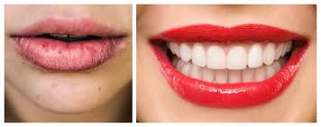 remes for dry skin around mouth