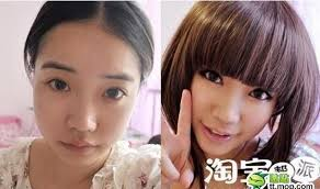before after8 jpg