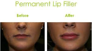 lip augmentation raleigh nc lip
