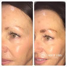 wilmington med spa permanent makeup