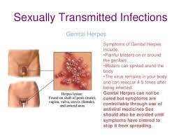 Herpes Resources