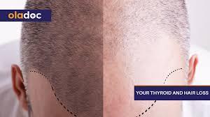 your thyroid and hair loss thyroid
