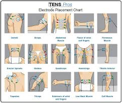 Tens Machine Pad Placement Chart Tens Unit Electrode Placement Chart For Different Sports