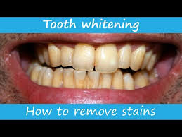 Hismile Review Electric Teeth