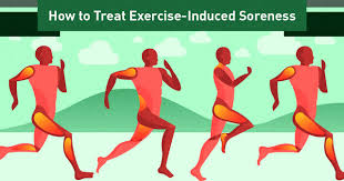 treat exercise induced muscle soreness