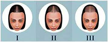hair loss in women diffe than in