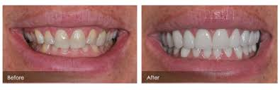 bulimic people teeth. Beautiful People Because Most People With Bulimia Are Of Normal Weight Or Even Slightly  Overweight It May Not Be Readily Apparent To Others That Something Is Wrong Throughout Bulimic People Teeth E