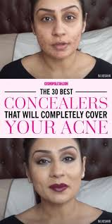 if you have acne e skin use a full coverage opaque concealer that es in a pot or stick form makeup artist vincent oquendo remends this type of