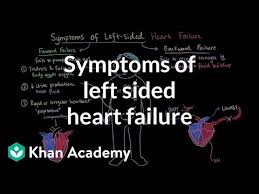 Left Vs Right Heart Failure Chart Symptoms Of Left Sided Heart Failure Video Khan Academy