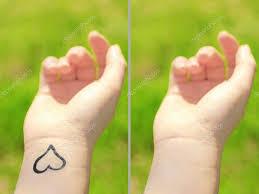 татуировка руке женщина лазерная татуировка удаления концепции