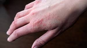 Is Eczema Contagious? 2 Skincare Experts Weigh In | Everyday Health