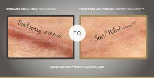 embrace scar therapy reviews. we are excited to now be offering embrace as the latest and greatest new scar therapy treatment. it not only flattens smoothes scars but actually reviews r