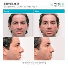 A nose should be built for life. Will Medicare Cover My Rhinoplasty Or Nose Surgery