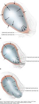 Effacement And Dilation Of The Cervix Chart Physiology Of Labor Williams Obstetrics 25e Accessobgyn