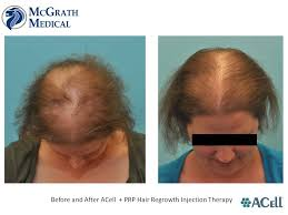 can acell prp help with your hair loss