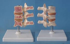 Image result for free images osteoporosis