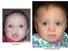 cleft lip repair cleft lip before and after photo gallery floating hospital for