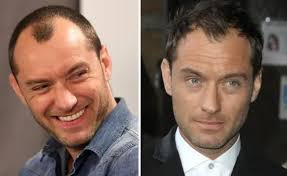 celebrities who had a hair transplant