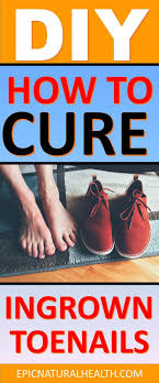 see your foot care expert if your ingrown toenail is bleeding inflamed or is producing puss from infection it is imperative to ask for cal advice if