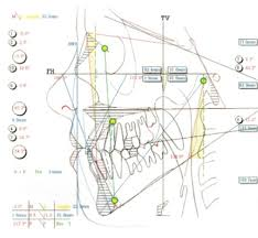 welcome to triple o dental laboratories triple o the bimler cephalometric analysis is based on headplate drawings that incorporate a greater number of anatomical features in this technique patients are