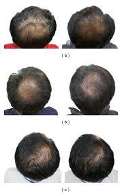 stoploss hair growth regrowth