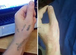 удаление тату в ташкенте татуаж удаление ташкент цены фото