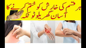 Rashes Treatment in Urdu|Home remedies for skin rashes and itching ...