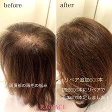 女性の悩みに多い頭頂部の薄毛エアエクをやることでふんわり