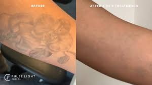 Tattoo Removal For Darker Skin London Pulse Light Clinic London