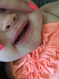 sores at sides of baby mouth mumsnet