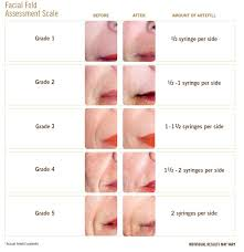 Lip Filler Chart The Inside To Dermal Fillers And What They Do Beauty Blog