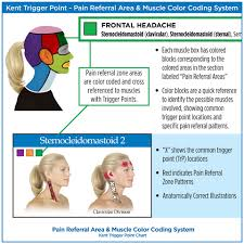 Head And Neck Trigger Point Chart