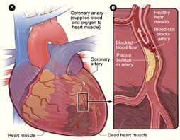 coronary artery disease ischemic heart disease overview  ischemic heart disease