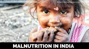 essay on malnutrition in short essays on famous quotes  essay on malnutrition in