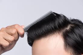 超簡単明日から使える薄毛対策とは思えないかっこいい髪型7選ヘア