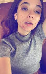 Star senza trucco: Matilda De Angelis mostra l'acne sul viso