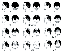 Male Pattern Baldness Causes Mesmerizing Hair Loss Causes In Men Hair Replacement Orlando